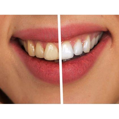 The teeth whitening procedure Beyond...