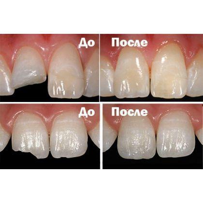 Фотополімерна реставрація зуба при...