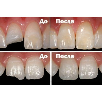 Photopolymer restoration of teeth...
