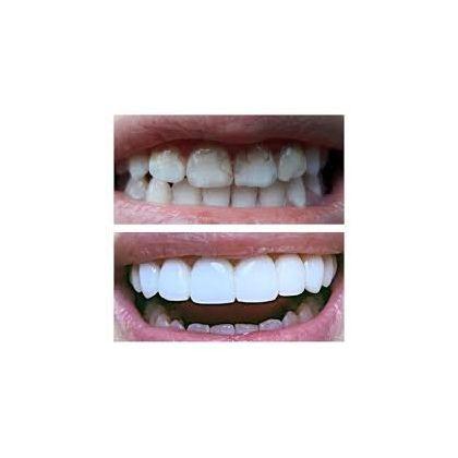 Photopolymer restoration of teeth...