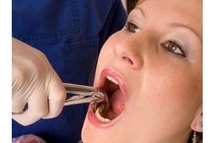 Удаление зубов, синус-лифтинг, установка имплантов