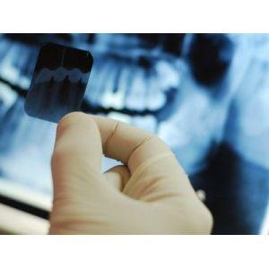Консультації стоматолога та допомога