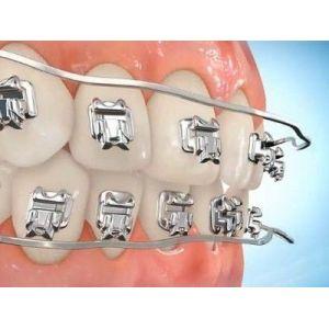 Брекет-системы, ортодонтические аппараты