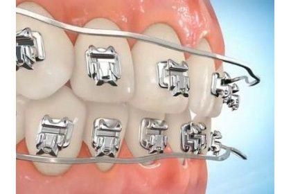 Брекет-системи, ортодонтичні апарати